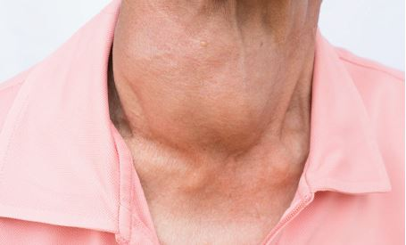 Thyroid Function Testing Update - Australian Clinical Labs